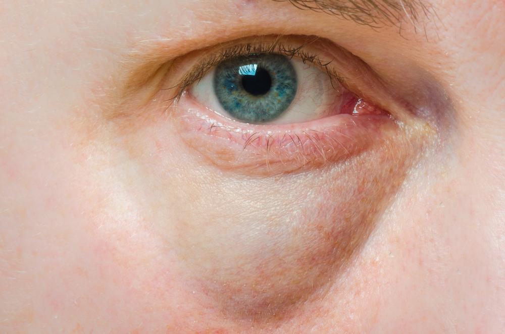 Как сделать красные и опухшие глаза